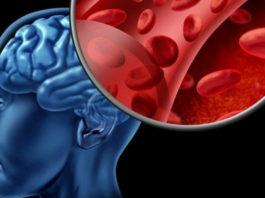 Народные средства, которые улучшат мозговое кровообращение