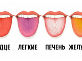 Болезни, о которых может рассказать Ваш язык