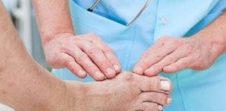 Какими способами лечить косточку на ноге
