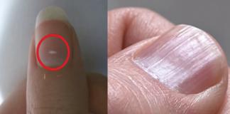 Важные вещи, которые говорят ногти о вашем здоровье