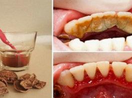 Как избавиться от зубного камня при помощи одного средства