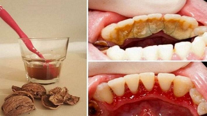 Как избавиться от зубного камня при помощи одного средства2