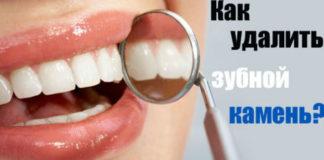Как избавиться от зубного камня при помощи одного средства1