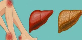 10 признаков того, что ваша печень перегружена токсинами