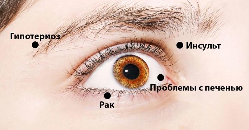 8-signalov-pri-pomoshhi-kotoryx-glaza-preduprezhdayut-o-problemax-so-zdorovem-obrati-vnimanie