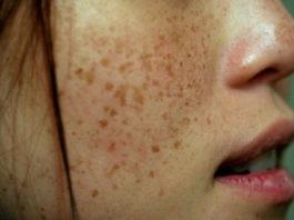 Пигментные пятна на лице: как можно избежать их появления