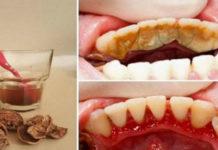 Классный способ избавиться от зубного камня самому дома