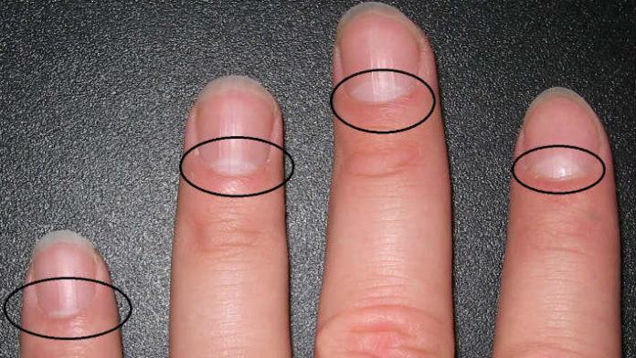 Есть ли у вас так называемый «полумесяц» на ногтях? узнайте, о это свидетельствует