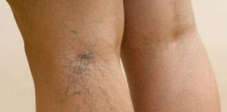 Врач - флеболог рассказал, что категорически нельзя делать при варикозе