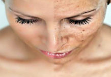 Дерматолог показал, как вывести коричневые пятна на коже лица простым трюком
