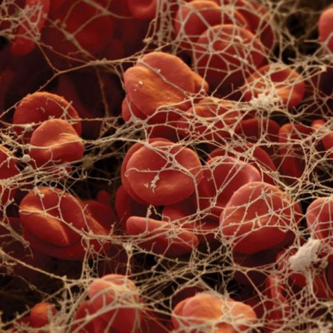 Познай себя: 23 захватывающих фото человеческих органов под микроскопом