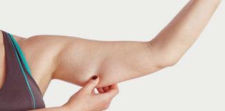 Способы избавиться от дряблой кожи