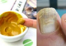 Лечение грибка ногтей быстро и навсегда
