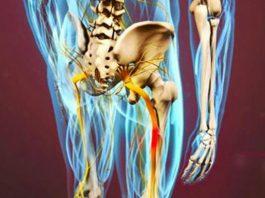 Разблокируй седалищный нерв: делай эти 2 простых упражнения, чтобы избавиться от боли