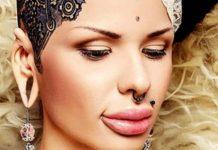 Девушка из Сочи решила убрать «утиные» губы. Итог впечатляет